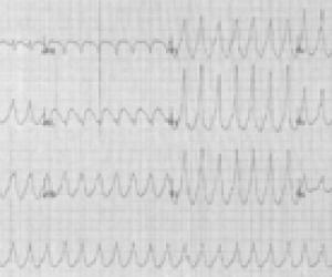 Taşikardi Nedir? What is tachycardia?