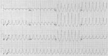 ventriküler taşikardi