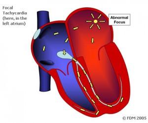 Taşikardi çeşitleri nedir?– what is Tachycardia Types