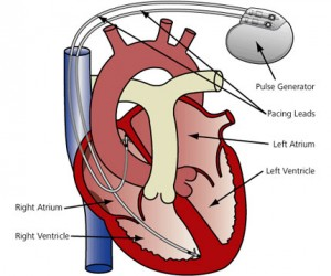 Kalp Pili Nedir,Nasil Takılır,tehlikelimidir