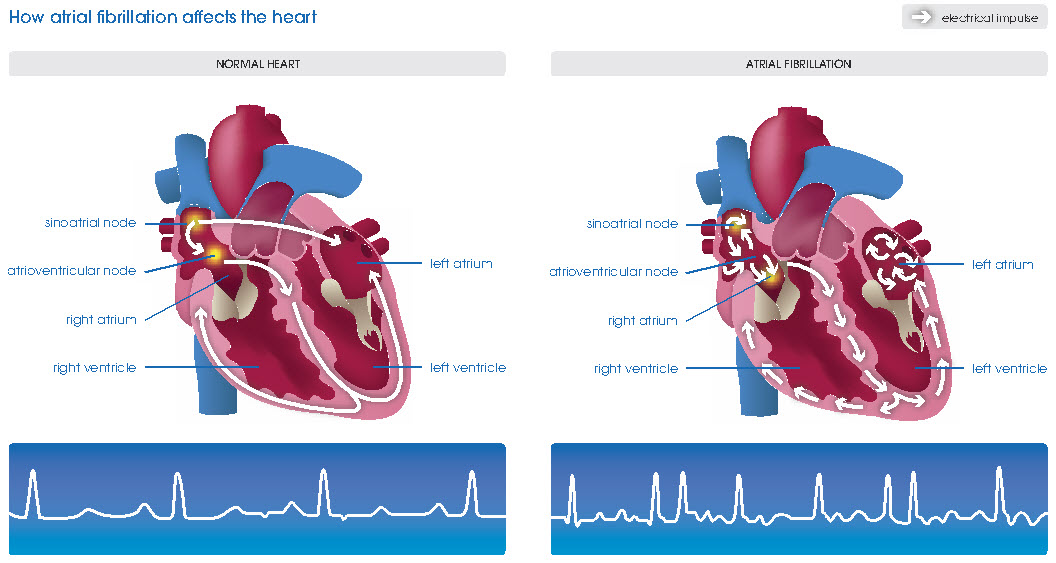 atrial-fibrillation-hamilyon.com