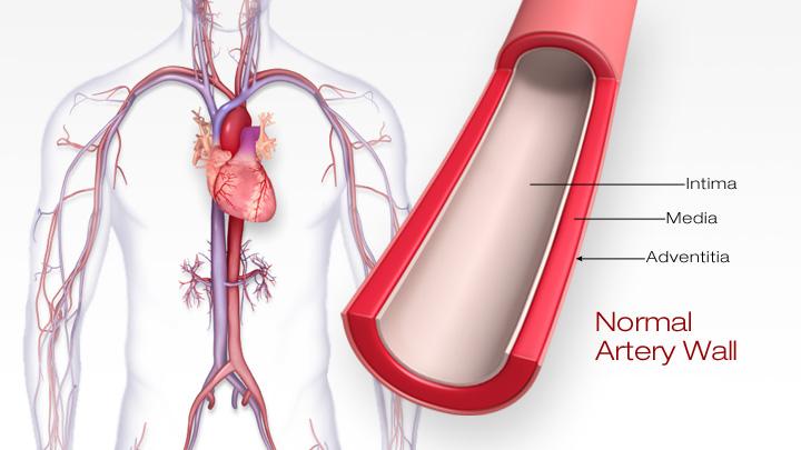 1- atherosclerosis nedir,damar sertligi nedir?