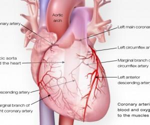 Kateter Ablasyon- AVNRT ABLASYON Catheter Ablation | AVNRT Ablation