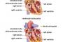 ATRİYAL FİBRİLASYON- ATRIAL FIBRILLATION