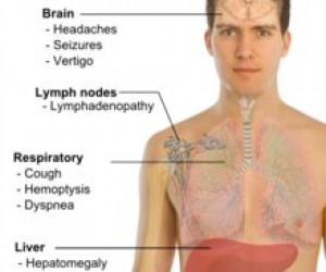 Kanser Çeşitleri Nelerdir? What is the Cancer Types?