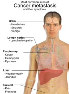 cancer-symptoms-hamilyon.com