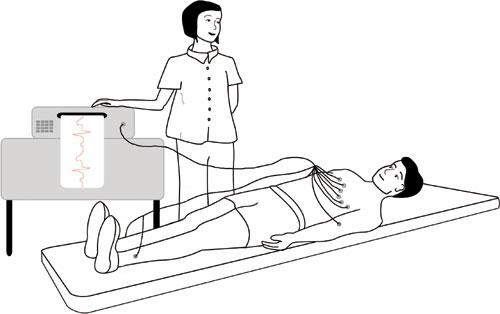 ECG - simplified a-hamilyon.com