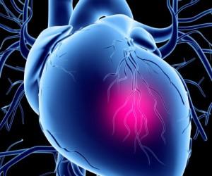 Kalp Krizi Belirtileri Nelerdir? – What is Heart Attack Symptomps?