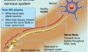 MS-Multipl Skleroz Nedir? What is Multiple Sclerosis?