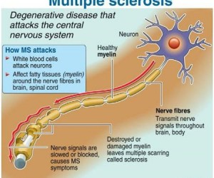 MS-Multipl Skleroz Nedir? What is Multiple Sclerosis?