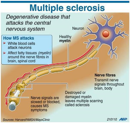 what-is-Multiple-Sclerosis-multipl-skleroz-nedir-hamilyon-com