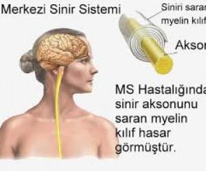 MS (Multipl Skleroz) Hastalığı Tedavisi Nasıl Yapılır? – How is MS Treatment made?