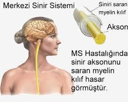 multipl-skleroz- ms-tedavisi