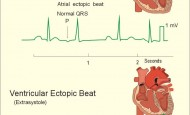 Ectopic Beats