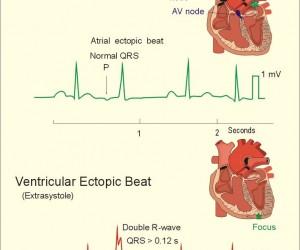 Ectopic Beats