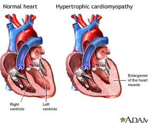 What is Cardiomyopathy | Hypertrophic
