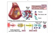 Pıhtı Önleyici kalp ilaçları ilaçları (antikoagülan ilaçlar) Nelerdir?