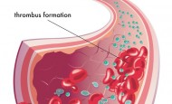 Antiplatelet Kalp İlaçları (Tromboantikor kalp ilaçları) nelerdir?