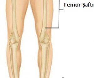 Femur Şaftı Kırıkları (Uyluk-Kaval Kemiği) – Femur Shaft Fractures (Broken Thighbone)